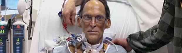 Ovo je jedan i jedini čovjek na planeti koji NEMA SRCE... On živi bez ijednog PULSA! (VIDEO)