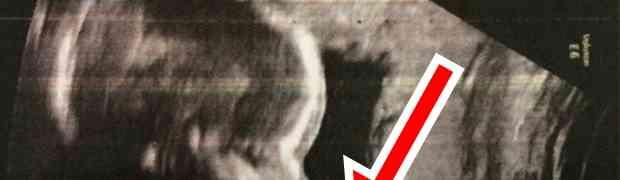 Doktori su pogledali ultrazvuk i ostali u šoku kada su vidjeli KOLIKU 'ALATKU' IMA OVA NEROĐENA BEBA! (FOTO)